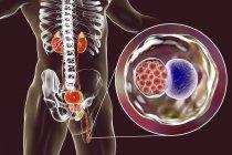 Цифровий ілюстрація чоловічий силует з уретри мазка, показуючи хламідійної інфекції з бактеріями хламідіоз рання. — стокове фото