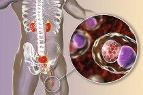 Illustrazione digitale della silhouette maschile con striscio uretrale che mostra infezione clamidia con batteri Chlamydia trachomatis . — Foto stock