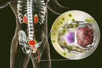 Ilustración digital de silueta masculina con frotis uretral que muestra infección por clamidia con bacterias Chlamydia trachomatis . - foto de stock