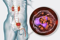 Close-up of bacterial gonorrhoea infection in male body, digital illustration. — Stock Photo
