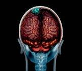 Tumeur cérébrale bleue sur imagerie par résonance magnétique, illustration . — Photo de stock