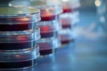 Страви Петрі з агаром крові укладаються в лабораторія мікробіології. — стокове фото