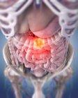 Ilustración del tumor de colon en el cuerpo humano . - foto de stock