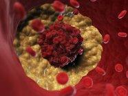 Ilustración del coágulo de sangre lipídica en el sistema circulatorio . - foto de stock