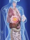 Ilustración de la silueta femenina con el cáncer de glándulas mamarias resaltado . - foto de stock