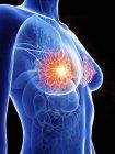 Ilustración de silueta femenina con glándulas mamarias inflamadas . - foto de stock