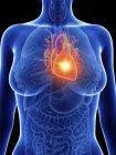 Ilustración de la silueta femenina con el corazón inflamado . - foto de stock