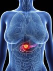 Ilustración de la silueta femenina con cáncer de páncreas resaltado . - foto de stock