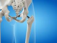 Ilustración de metal de reemplazo de cadera implante sobre fondo azul. - foto de stock
