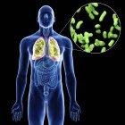 Ilustración de pulmones con primer plano con infección en silueta corporal masculina sobre fondo negro . - foto de stock