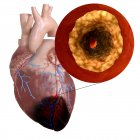 3d rendered illustration of heart attack on white background. — Stock Photo
