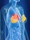 3d renderizado ilustración de color de las glándulas mamarias femeninas cáncer en silueta corporal . - foto de stock