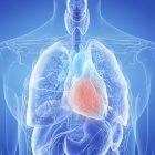 Ilustración del corazón inflamado en la silueta del cuerpo humano . - foto de stock