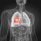 Ilustración del cáncer de pulmón en la silueta del cuerpo humano . - foto de stock