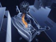 Illustration d'un employé de bureau masculin au dos douloureux . — Photo de stock