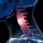 Illustrazione digitale del collo doloroso nello scheletro umano . — Foto stock