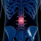Digitale Illustration der schmerzhaften Lendenwirbelsäule im menschlichen Skelett. — Stockfoto