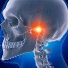 Ilustración digital de la articulación temporomandibular dolorosa en el esqueleto humano . - foto de stock