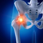 Illustration of painful hip joint in human skeleton on blue background. — Stock Photo