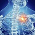 Ilustración de clavícula dolorosa en esqueleto humano . - foto de stock