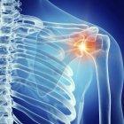 Ilustración de la articulación dolorosa del hombro en el esqueleto humano sobre fondo azul . - foto de stock