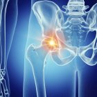 Illustration of painful hip joint in human skeleton. — Stock Photo