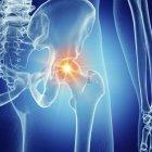 Ілюстрація хворобливі кульшового суглоба у людському скелеті. — стокове фото