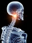 Ilustración de la columna cervical dolorosa en la parte esquelética humana . - foto de stock