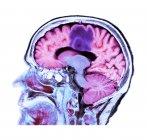 Кольорові комп'ютерної томографії сканування мозку розділу старший пацієнтки гліобластомі рак мозку. — стокове фото