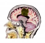 Tomografia computerizzata colorata della sezione cerebrale della paziente anziana con glioblastoma cancro al cervello . — Foto stock