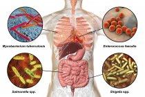 Ilustración digital que muestra bacterias causantes de infecciones del sistema respiratorio, del corazón y del tracto digestivo, Mycobacterium tuberculosis, Enterococcus faecalis, Salmonella, Shigella . - foto de stock
