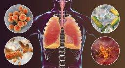 Illustration numérique montrant des bactéries causant une pneumonie nosocomiale, Staphylococcus aureus, Pseudomonas aeruginosa, Klebsiella pneumoniae, Escherichia coli . — Photo de stock