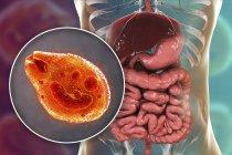 Ilustración digital que muestra el primer plano del protozoario ciliado Balantidium coli parásito intestinal que causa úlcera por balantidiasis en el tracto intestinal humano . — Stock Photo