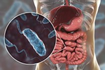 Digital illustration showing close-up of cholera infection bacteria in small intestine. — Stock Photo
