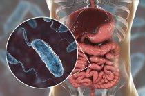 Digitale Illustration zeigt die Nahaufnahme von Cholera-Infektionsbakterien im Dünndarm. — Stockfoto