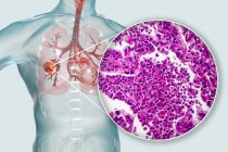 Cancer du poumon, illustration numérique et micrographie lumineuse du tissu cancéreux . — Photo de stock