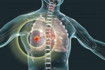 Cáncer de pulmón, ilustración digital que muestra tumor maligno en pulmón . - foto de stock