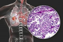 Lungs cancer, digital illustration showing malignant tumour in lung. — Stock Photo