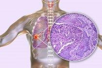 Ilustración digital y micrografía ligera del carcinoma de células escamosas de pulmón . - foto de stock