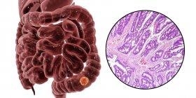 Cáncer de colon, ilustración digital y micrografía de luz que muestra adenocarcinoma de colon . - foto de stock