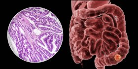 Cancro al colon, illustrazione digitale e micrografo luminoso che mostra adenocarcinoma del colon . — Foto stock