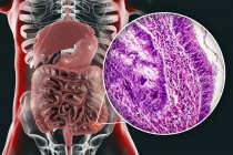 Colon cancer, digital illustration and light micrograph showing colon adenocarcinoma. — Stock Photo