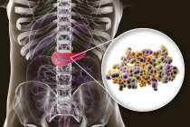 Pancreas in human body and close-up view of insulin molecule, digital illustration. — Stock Photo