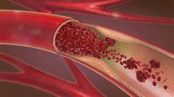 3d ilustración de arteria estrechada y estrechada, mientras que la arteriosclerosis . - foto de stock