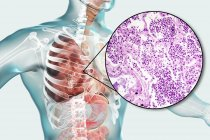 Pneumonie lobaire en phase d'hépatisation grise ou de consolidation tardive, illustration numérique et micrographie photonique . — Photo de stock