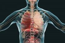 Pneumonia lobar em estágio de hepatite vermelha, ilustração digital conceitual . — Fotografia de Stock