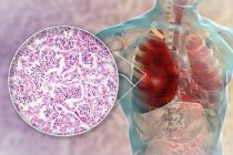 Polmonite lobare in fase di epatizzazione rossa, illustrazione digitale e micrografo leggero . — Foto stock
