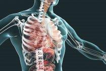 Lobar pneumonia in stage of grey hepatisation, conceptual digital illustration. — Stock Photo