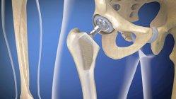Hip заміна імплантатів, медична Цифрова ілюстрація. — стокове фото