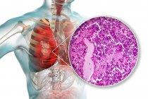 Lungenentzündung im Stadium der Staus und Konsolidierung, digitale Illustration und Lichtmikrographie. — Stockfoto